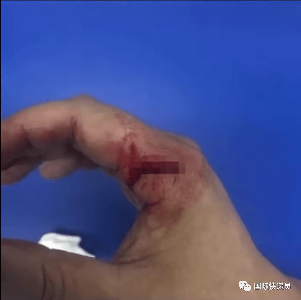 空手夺刀肌腱断裂,其实防割手套就揣在屁股后头